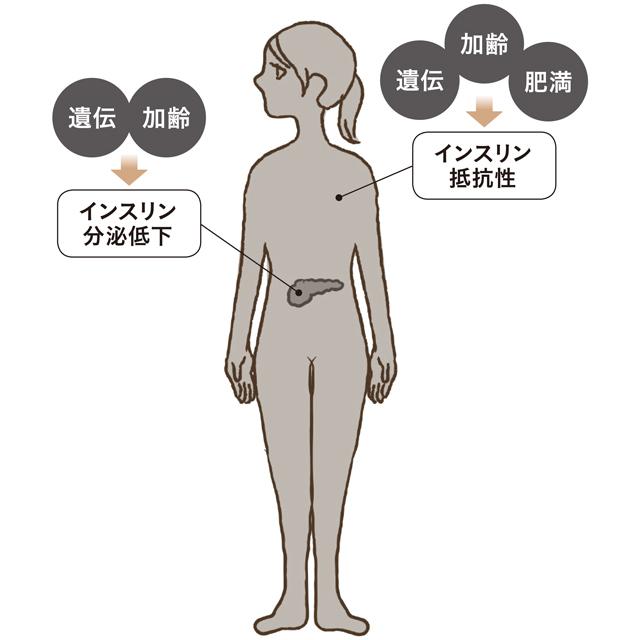 高血糖になる原因とインスリンの関係