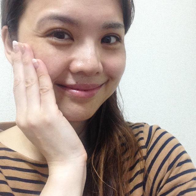 美容医療、デビューしました。_1_2-1