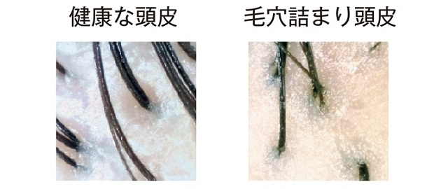 毛穴詰まり頭皮と健康な頭皮