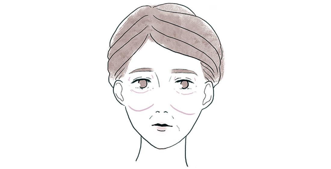 アラフォーの顔の〝たるみ〞2_4