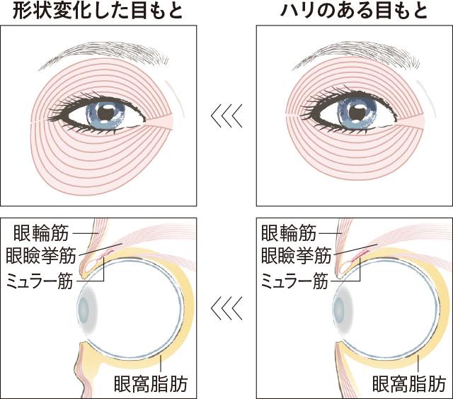 アラフィーの「眼輪筋」に起こっていること