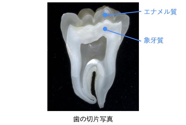 歯と歯ぐきを守る「アパデント」の特徴とは?