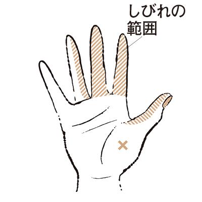 親指 しびれ 左手