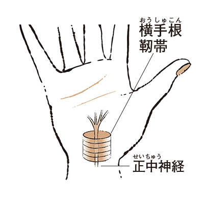 """3. 人さし指や中指などがしびれる """"手根管症候群""""【50代のお悩み・更年期の手指問題】_1_1"""