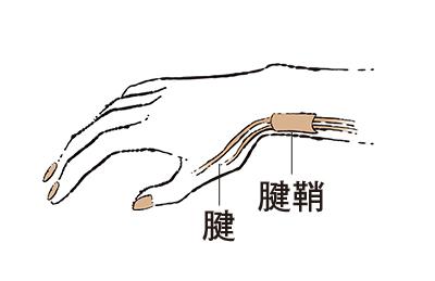 """2. 親指側の手首が痛む """"ドケルバン病""""【50代のお悩み・更年期の手指問題】_1_1"""
