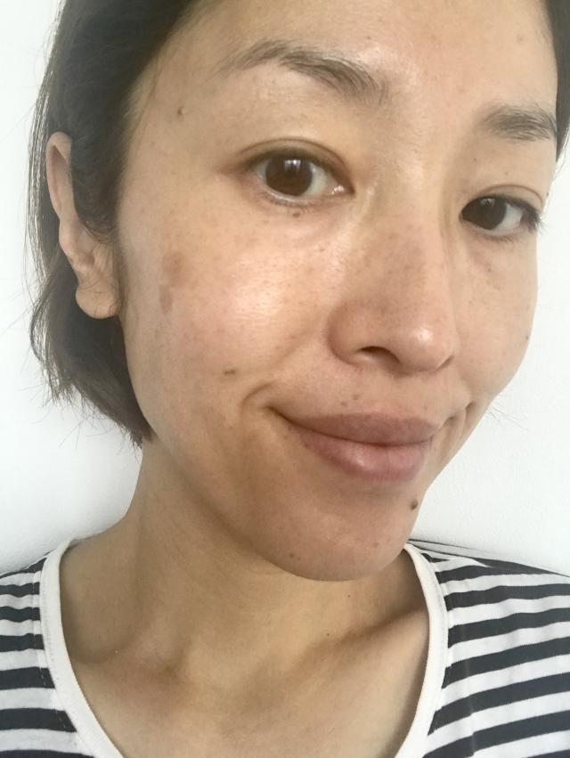 冬こそ「美容医療」の始めどき!念願の「シミ治療」体験をしてきました!_1_5-1