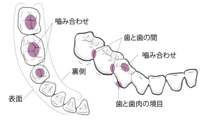 日常生活でまずすべき歯周病ケアって何ですか?【歯周病ケアQ&A】_1_3
