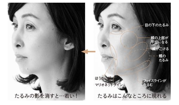意識すべきはナナメ45°!他人目線に気づくための「顔たるみ」チェック表_1_3