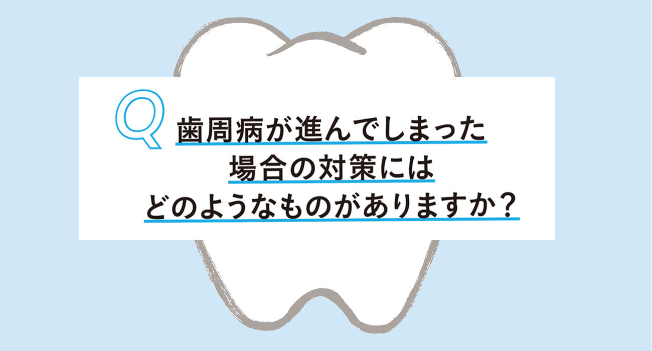 歯と歯茎の知っておきたいQ&A3