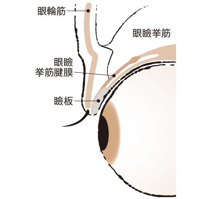 2タイプある眼瞼下垂