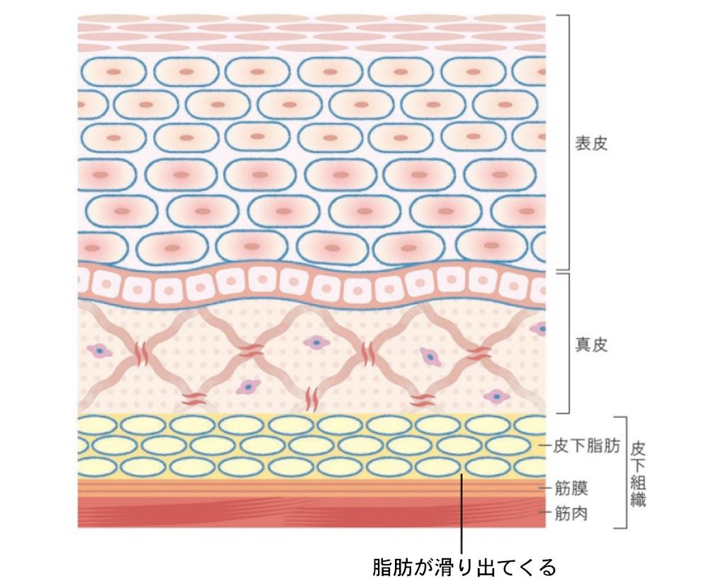 表皮バリア機能の低下の図