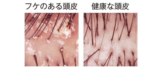 フケのある頭皮と健康な頭皮