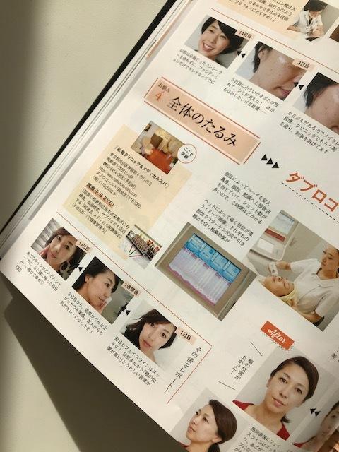 初めての美容医療を体験しました!_1_3