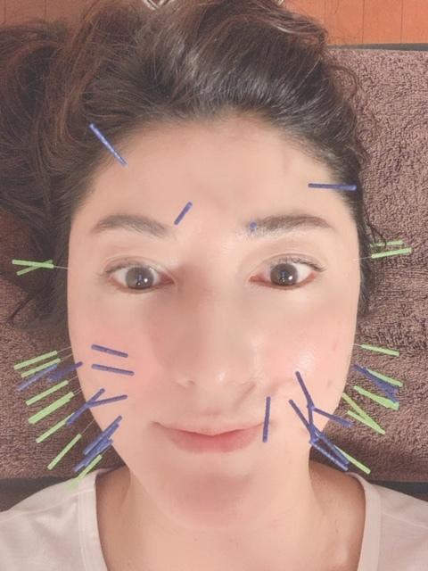 美容針で小顔に❗️_1_4