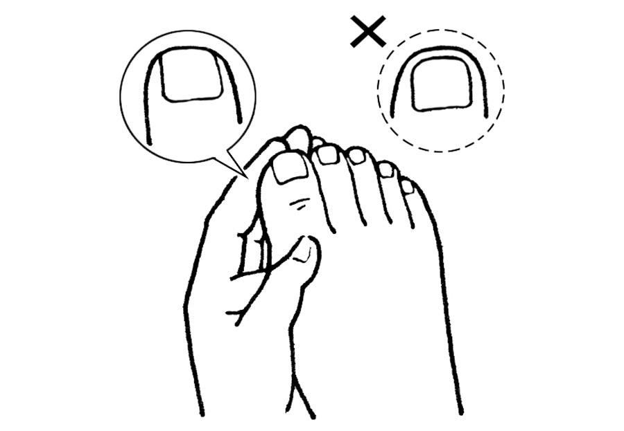 爪まわりのトラブルを防ぐための3つのルール_1_1