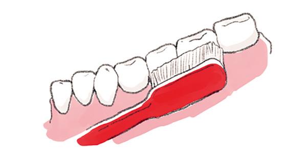 日常生活でまずすべき歯周病ケアって何ですか?【歯周病ケアQ&A】_1_2-3