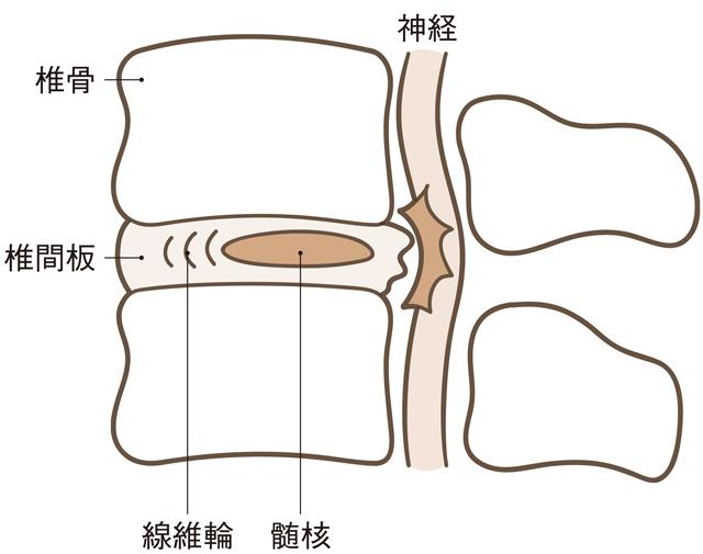 ぎっくり腰 これが痛みの原因のひとつ!