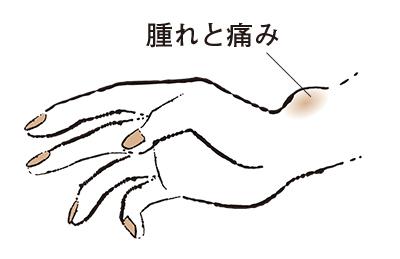 """2. 親指側の手首が痛む """"ドケルバン病""""【50代のお悩み・更年期の手指問題】_1_2"""
