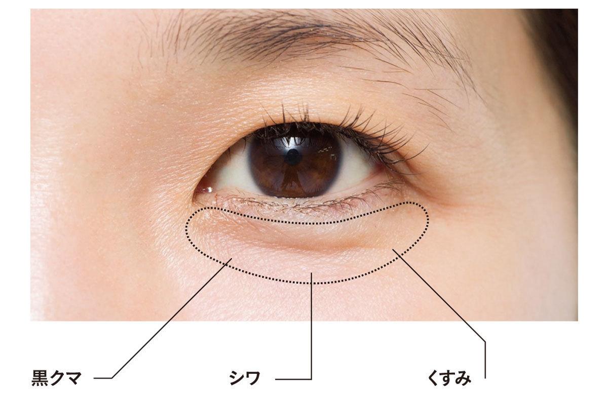 目の下の悩み