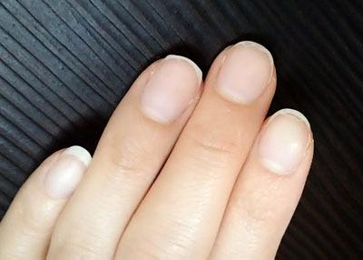 大人の先端美容・スキンケアは爪にまで。ネイル美容液で爪を強化!_1_1