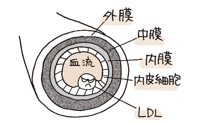 動脈硬化のすすみ方1
