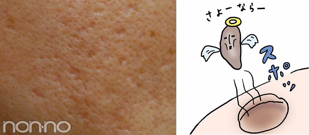 ニキビ跡(クレーター)の症状