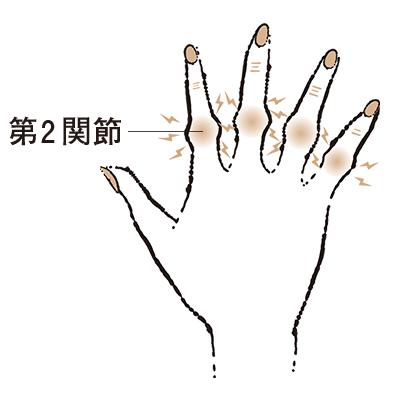 手 の こわばり 更年期
