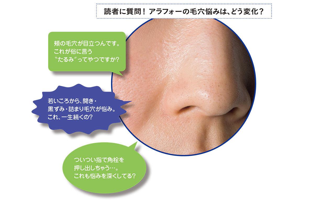 毛穴の形1_1