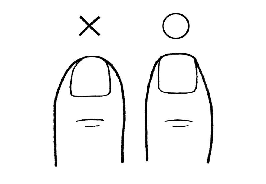 爪まわりのトラブルを防ぐための3つのルール_1_2