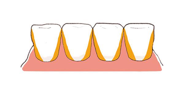 日常生活でまずすべき歯周病ケアって何ですか?【歯周病ケアQ&A】_1_5