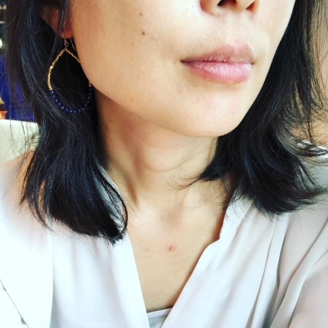 怖い?怖くない!はじめての美容医療【マリソル美女組ブログPICK UP】_1_1-6