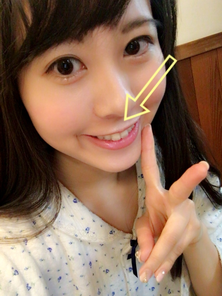 可愛いのコツは実は鼻の下の長さ♡人中(鼻の下)を短く見せるテク_1_1