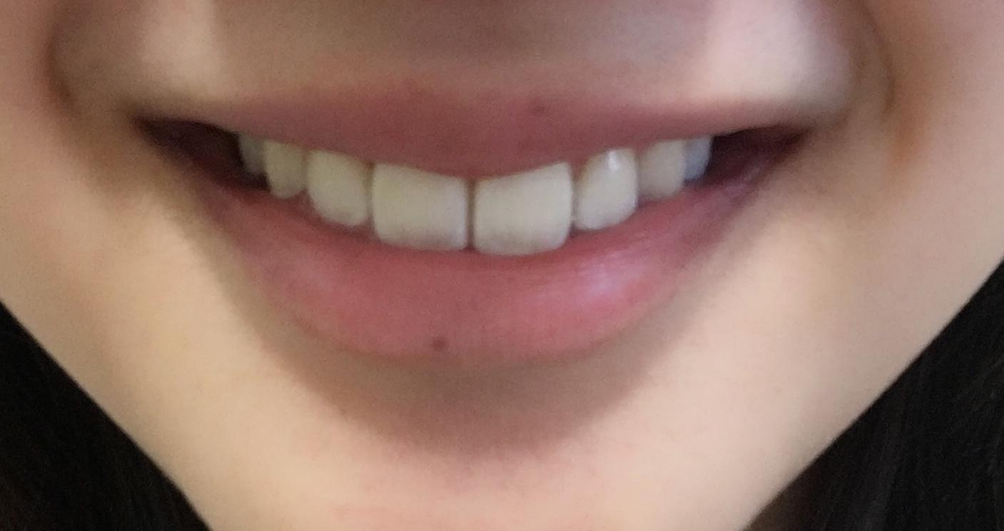 お家で簡単《ホームホワイトニング》で輝く白い歯に♡_1_2