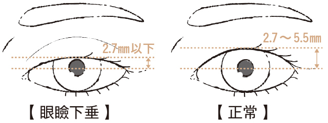 眼瞼下垂の疑い