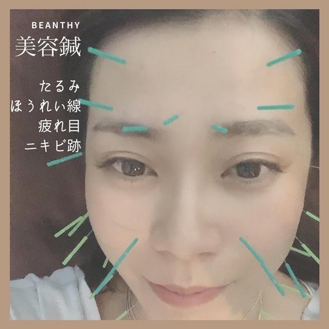 マスクの中で疲れのお肌に美容鍼という選択_1_2