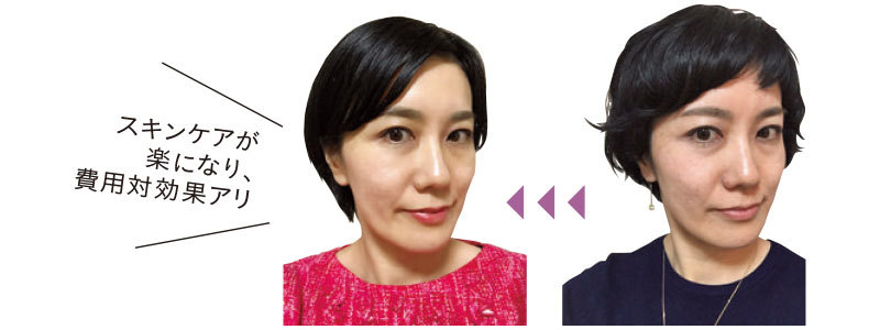 マリソル美女組のキレイの真実「SNS美人」「クリニック美人」_1_4