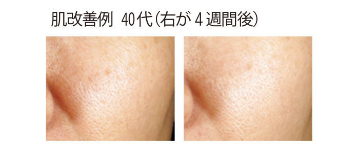 機能性成分「エクトイン」を用いた化粧水と乳液を4 週間続けた肌のほうれい線やキメが明らかに改善。資料提供/花王