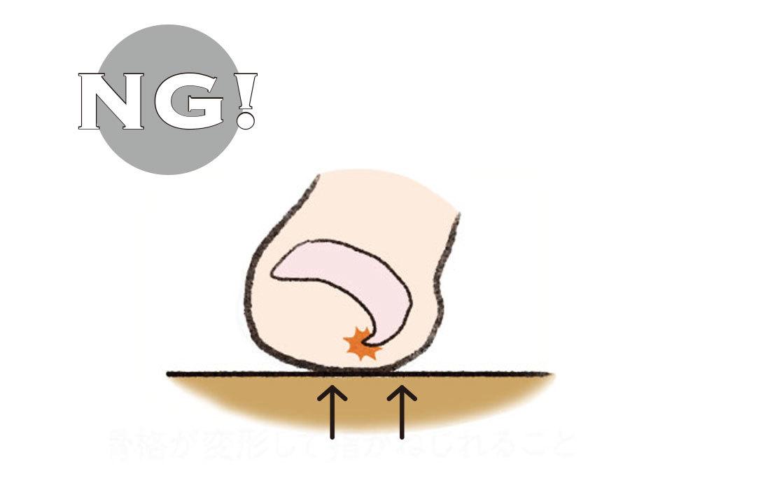 巻爪や変色に悩んでいます!足の爪に関するQ&A_1_3