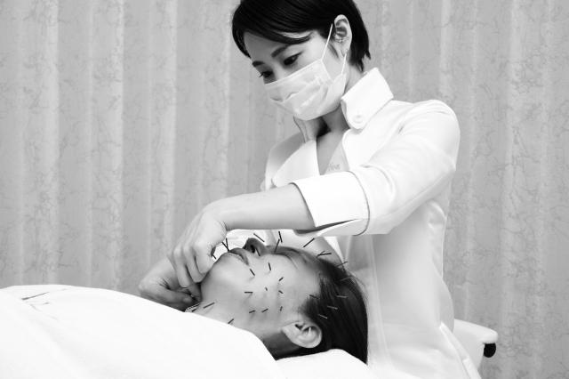 刺す鍼で、皮膚のゆるみを引き締めていく