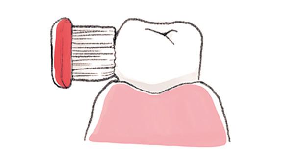 日常生活でまずすべき歯周病ケアって何ですか?【歯周病ケアQ&A】_1_2-2