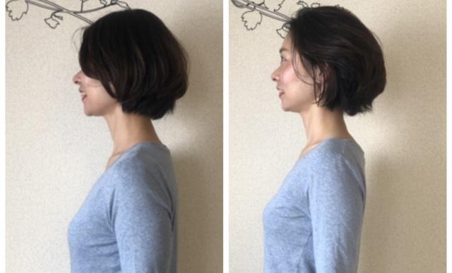「美容矯正」で根本から整えて、持続可能で健やかな美を_1_1-2
