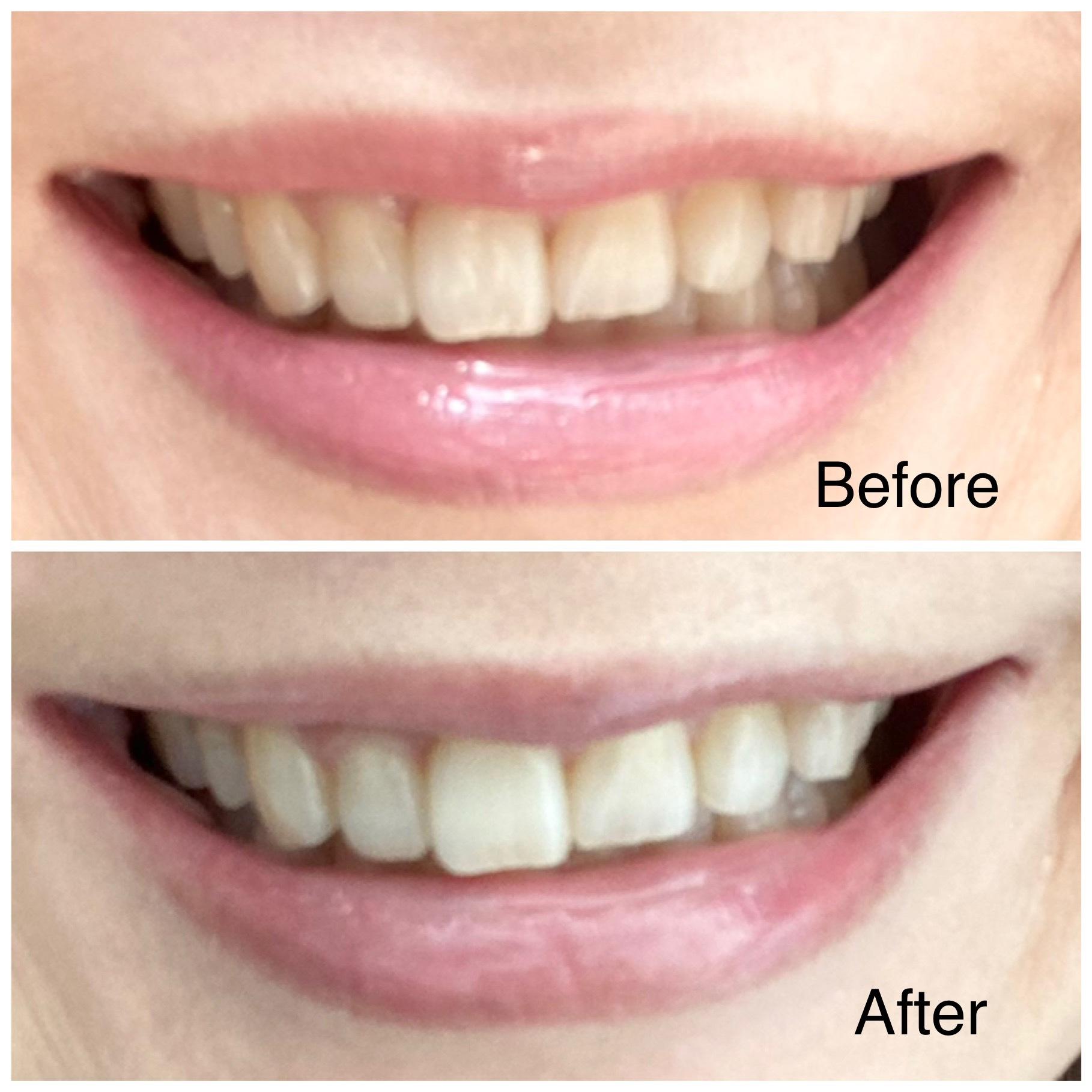 歯の白さビフォーアフター