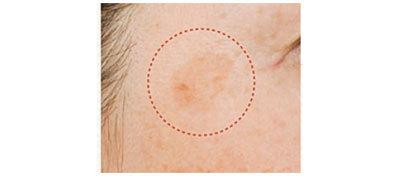 美容医療のシミ取り術、その実力とは? アラフォー向けシミ治療のまとめ_1_6