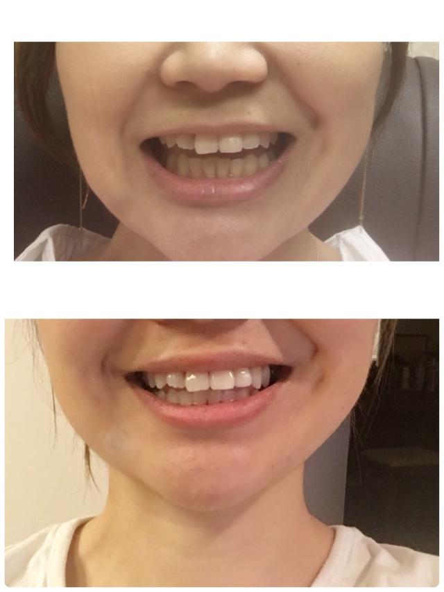 歯のホワイトニングをはじめました!_1_2
