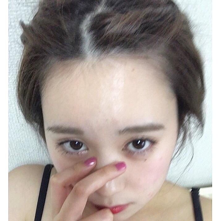 eye bags_1_1