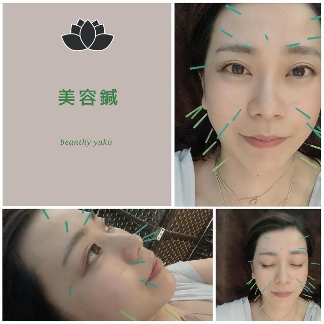 マスクの中で疲れのお肌に美容鍼という選択_1_1