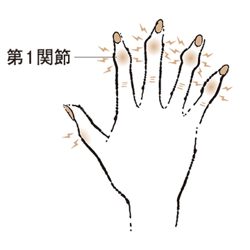"""4. 第1関節が腫れ、変形する """"べバーデン結節""""【50代のお悩み・更年期の手指問題】"""
