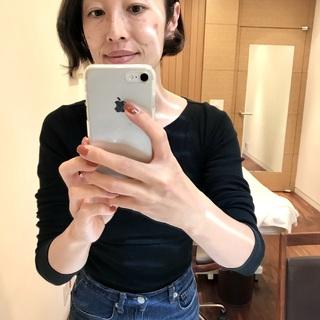 冬こそ「美容医療」の始めどき!念願の「シミ治療」体験をしてきました!