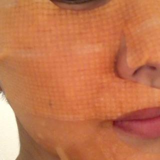 アスタリフト ホワイト ブライトニングマスクは凄い♡シミが薄くなりました。_1_2-2