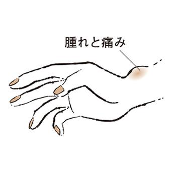 """2. 親指側の手首が痛む """"ドケルバン病""""【50代のお悩み・更年期の手指問題】"""